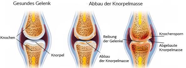arthrose-schaubild